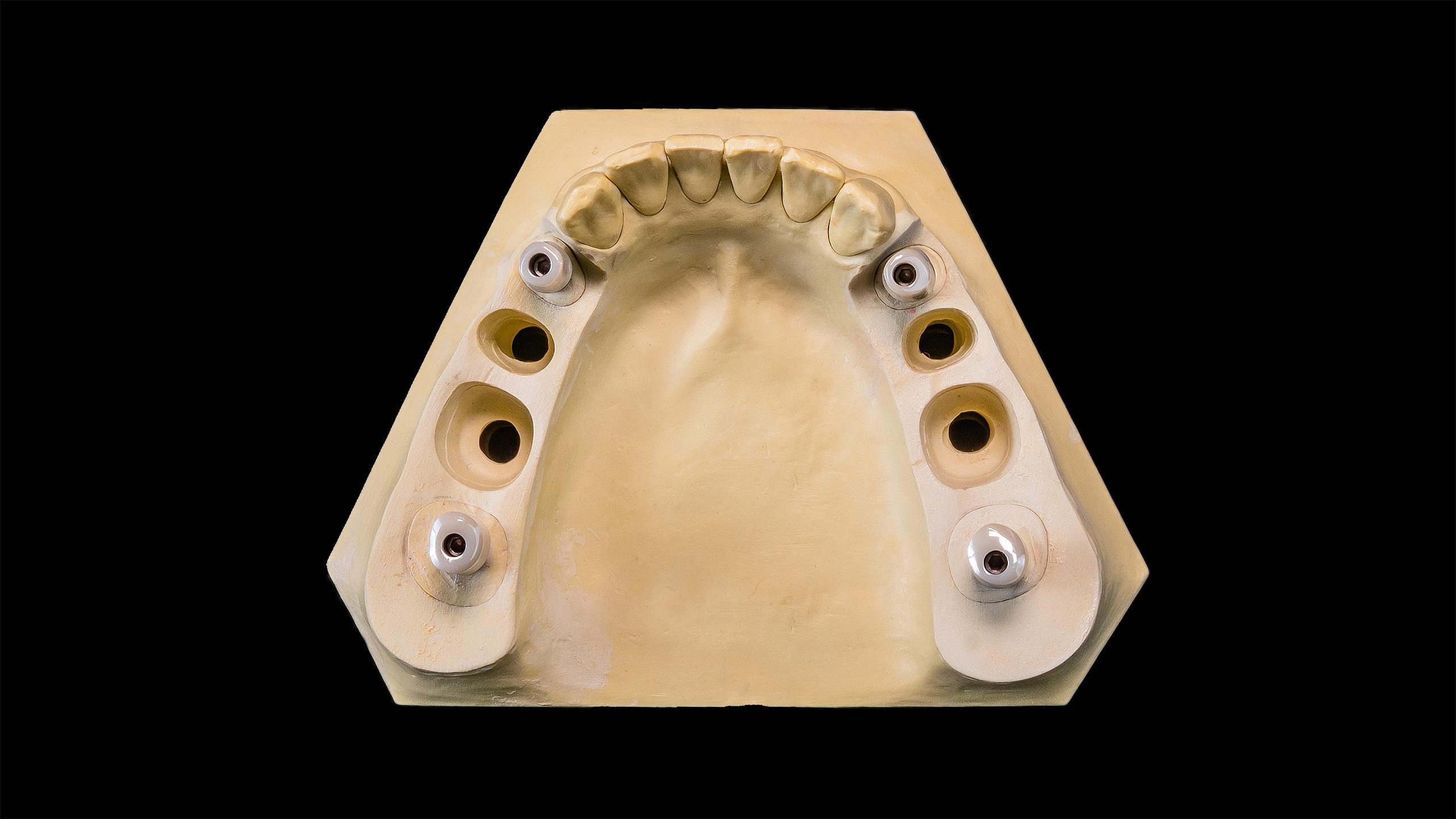 Galerie u seite u creativ dental gmbh