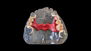 Palatinalbügel in rosa PEEK, Zähne aus PMMA-Multicolor